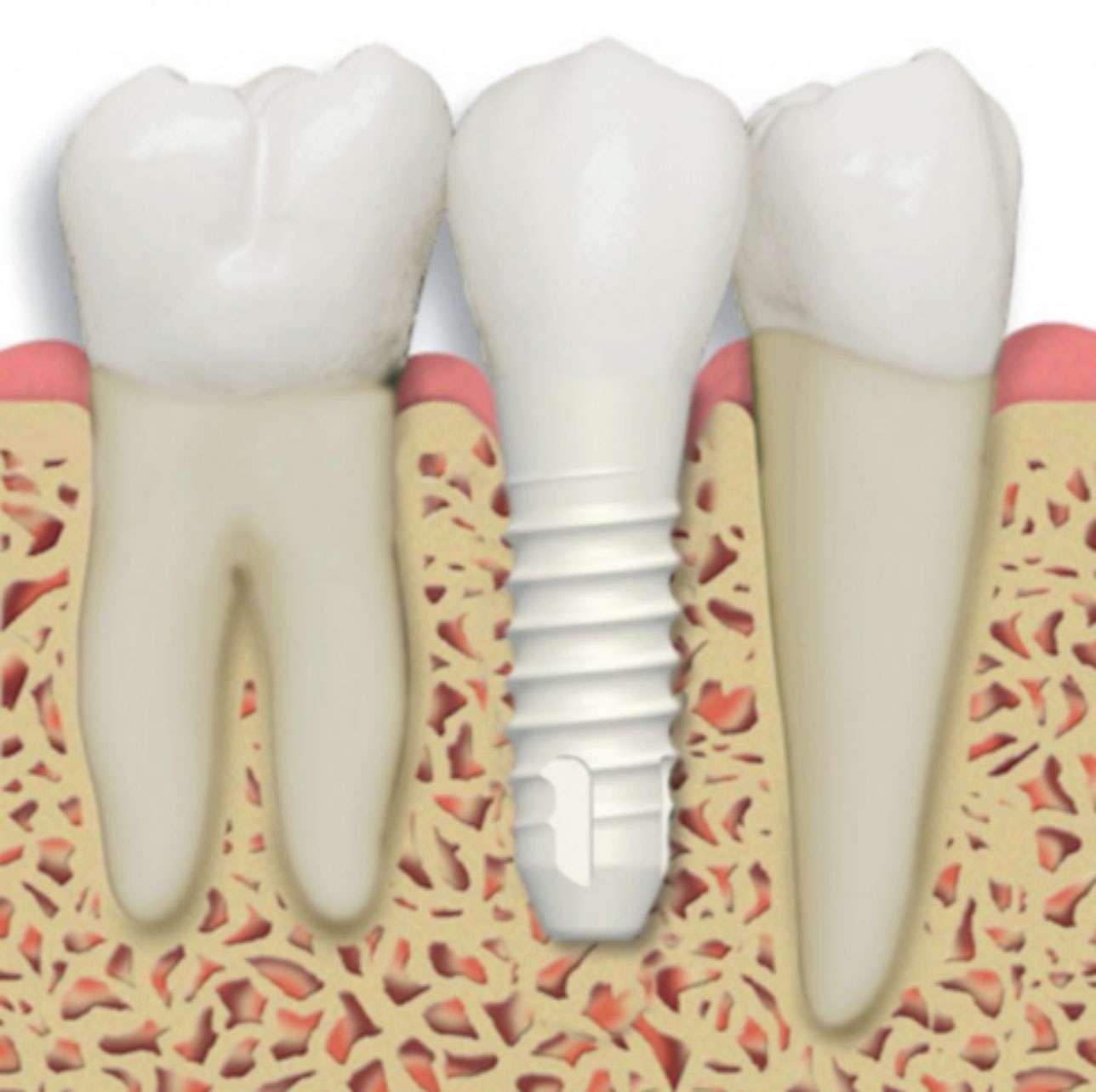Image result for zirconium implants